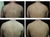 back-hair-4-pictures-before-and-after-copy