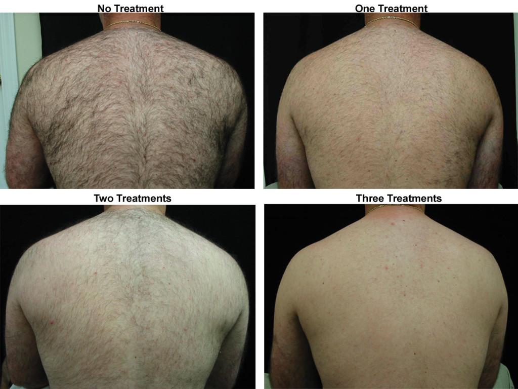 Back Hair 4 Pictures Conigilio, David copy
