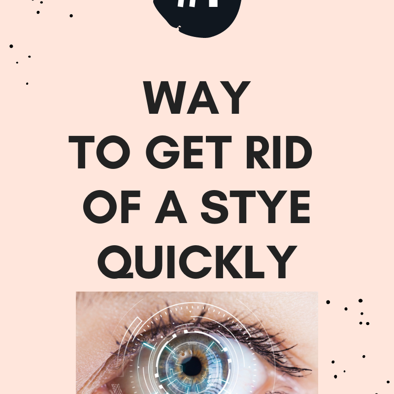 Get Rid of A Stye