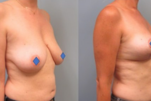 Woman standing with shirt off first image is before her breast reduction and the second image is her after her breast reduction showing significant difference.