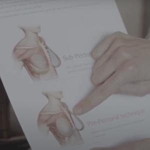 Pre-Pectoral Implant Reconstruction