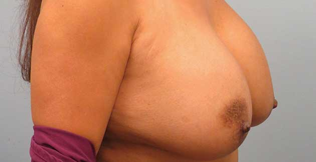 Side view of a patients breast before Anne Peled, MD performed surgery