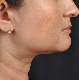 neck1a