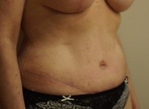 30 Days Post Op