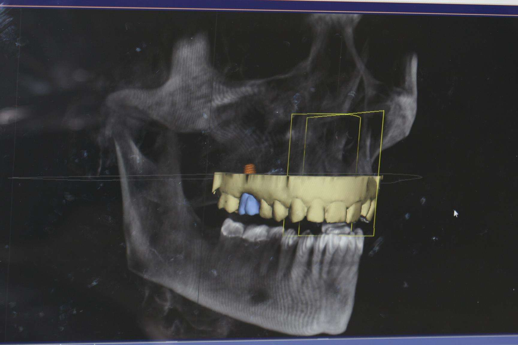 Dental Implant Technology