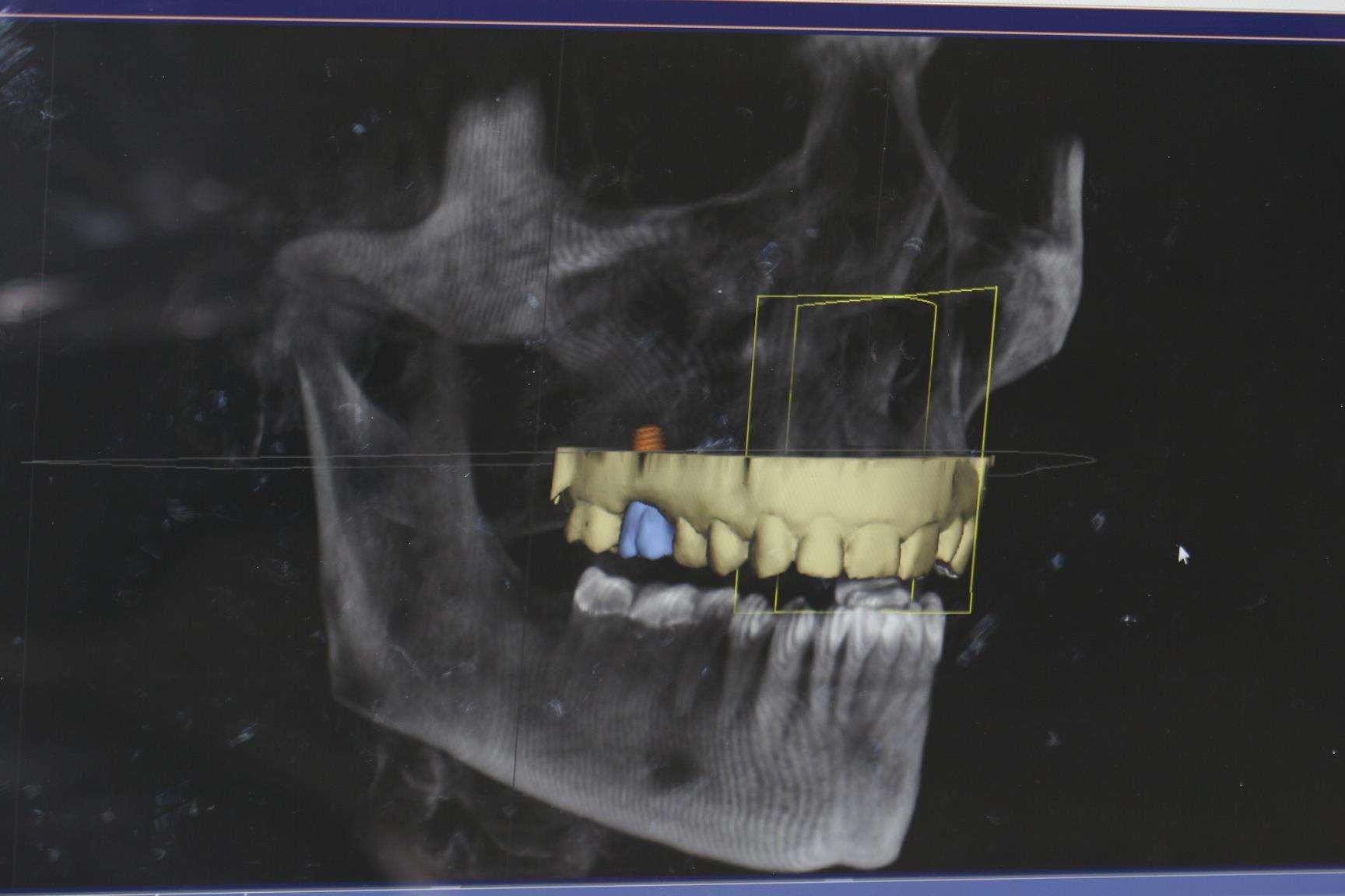 Dental Implant Technology
