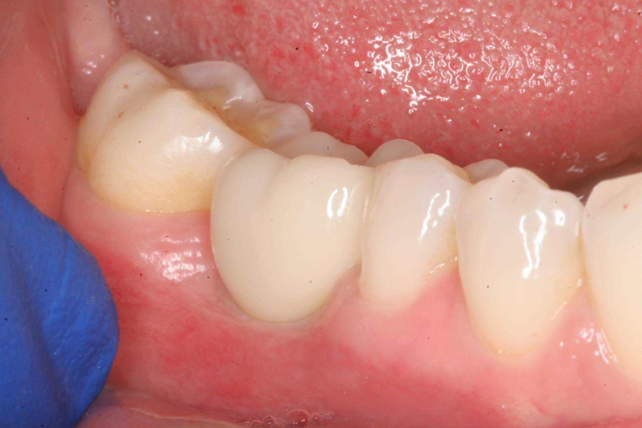 Dental Implant and Crown