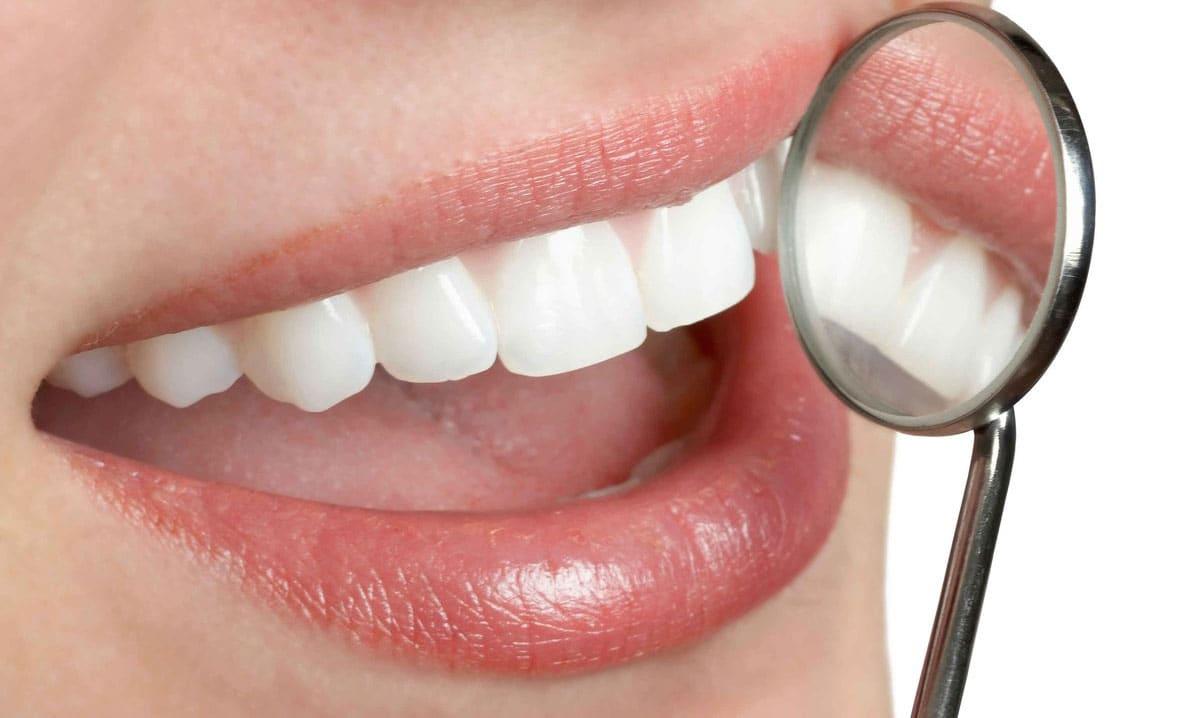 Cosmetic Dentistry in Arizona