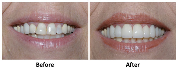 cosmetic dentistry lancaster pa