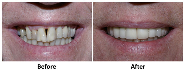 lancaster pa cosmetic dentistry