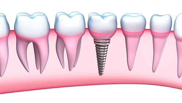 Dental implants Lancaster pa