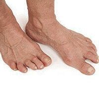Picture of patients foot suffering from Arthritis