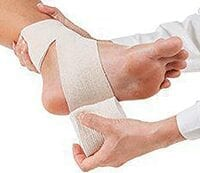 Pictures of patients foot suffering from Ankle Sprain.