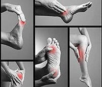 Collage of Pictures of patients foot suffering from Foot Pain
