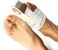 Pictures of patients foot suffering from Fractures