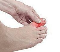 Picture of patients foot suffering from gout clutching big toe