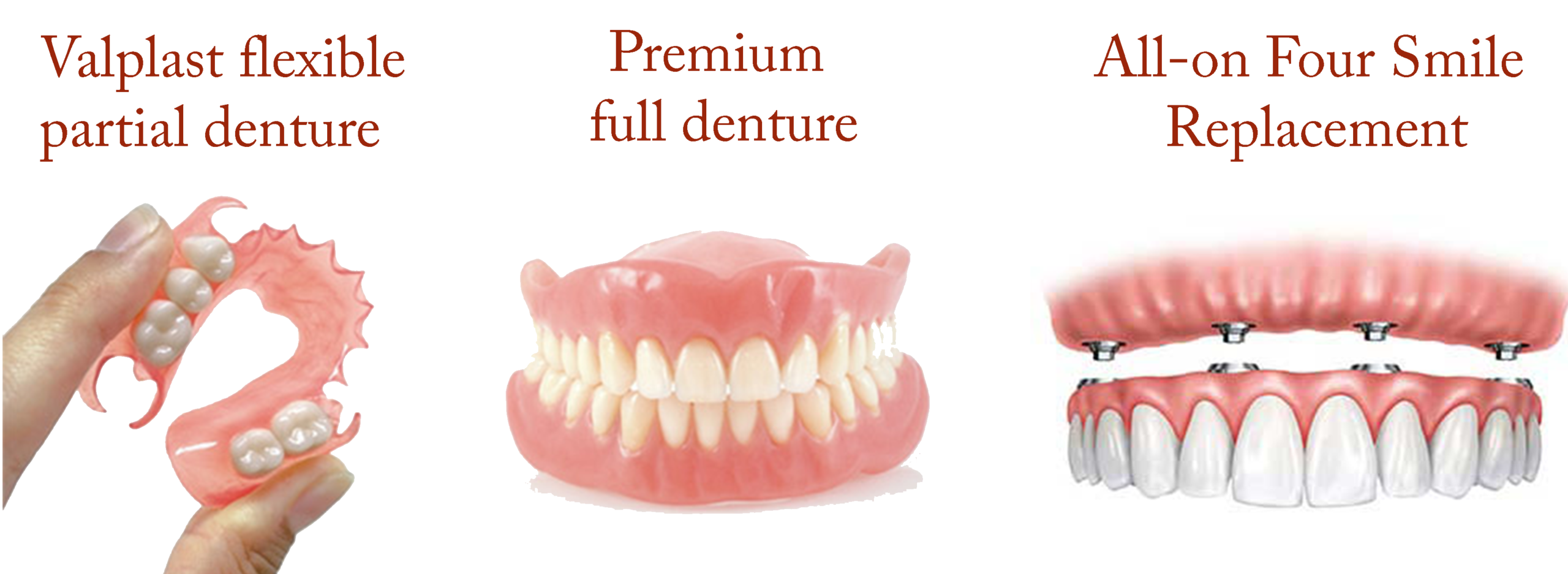 Dentures, Partials, All-On Four
