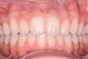 straight teeth, orthodontics by Mark Cordato, Lithgow, Katoomba, Blackheath, Leura, Mudgee, Portland, Wallerawang, Kandos, Oberon, Marrangaroo, Mount Victoria and Hartley
