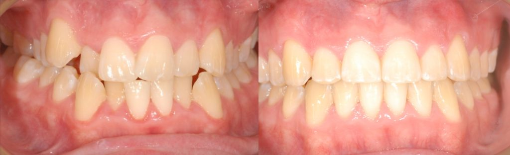 Transformed from crooked to straight teeth, orthodontics by Mark Cordato, Lithgow, Katoomba, Blackheath, Leura, Mudgee, Portland, Wallerawang, Kandos, Oberon, Marrangaroo, Mount Victoria and Hartley