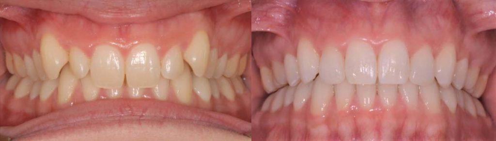 Straight teeth after orthodontic braces by Mark Cordato - Lithgow - Mudgee - Oberon - Katoomba - Blackheath
