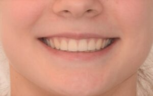 Straight even teeth, lots of the upper teeth showing