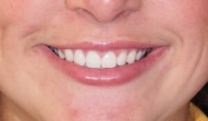 Straight even teeth, lots of the upper teeth showing, great smile arc