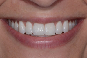 Another lovely smile, it takes great teamwork, my staff our patients and me to produce good results like this.