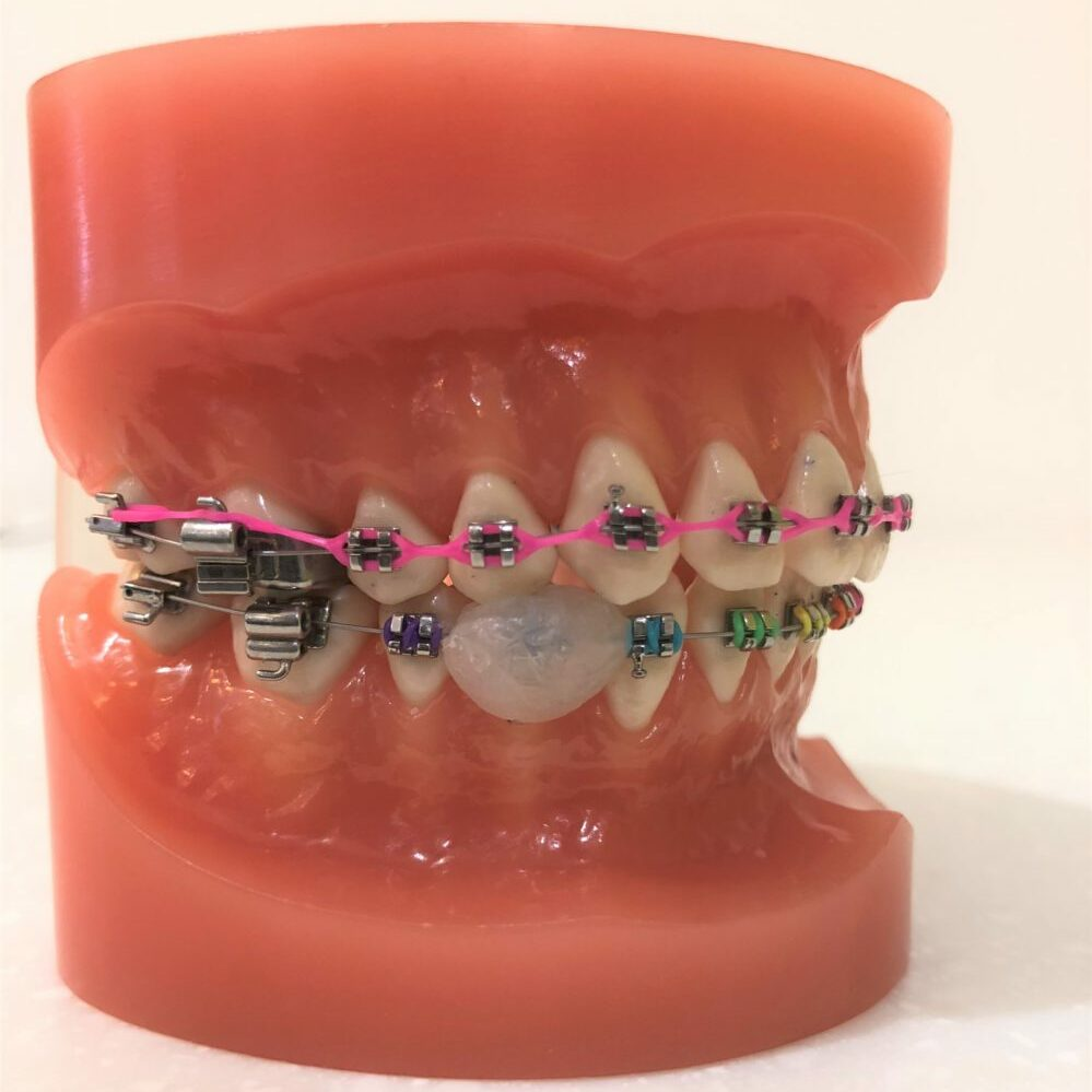 How to position wax to cover a bracket that can be irritating the cheek or lip