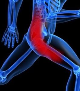 Sciatica Physical Therapy