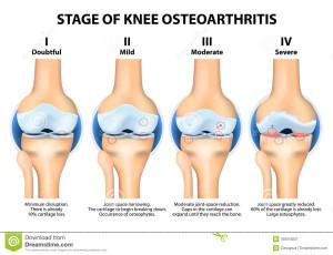 Osteoarthritis Treatment