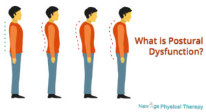 Postural Dysfunction physical therapy