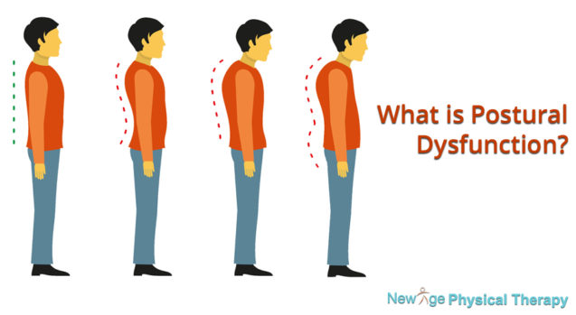 What is Postural Dysfunction?