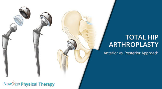 Total Hip Arthroplasty – Anterior vs. Posterior Approach