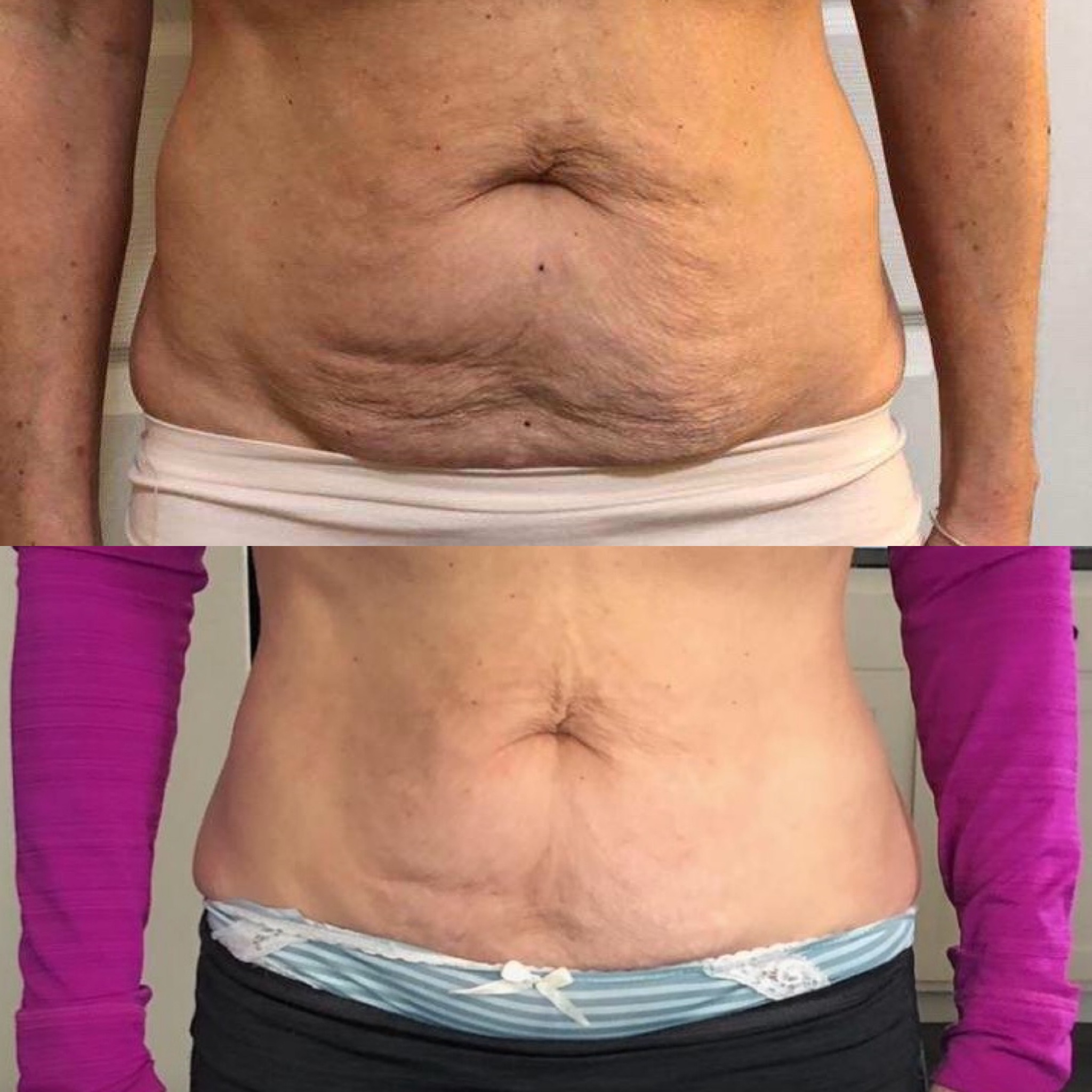 After 4 skin tightening and cavitation treatments!