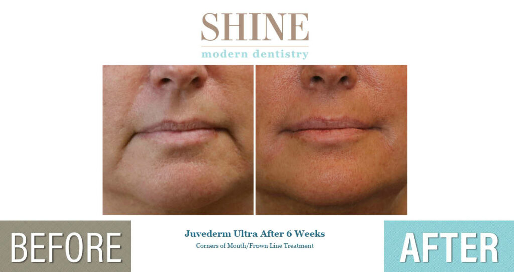 Shine - Before And After 10