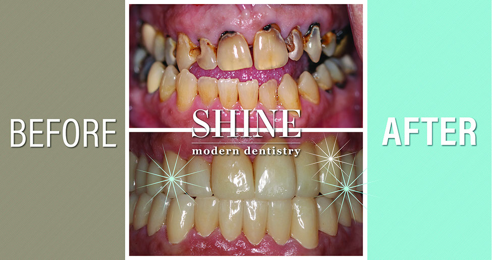 Shine - Before And After 9