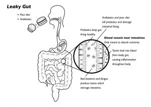 leaky-gut correction dr. bagnell nutritional services