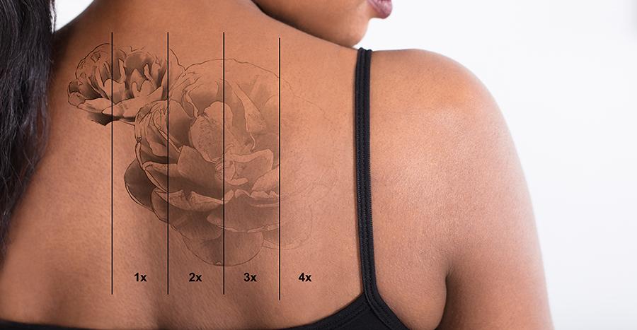 Tattoo-Removal-1