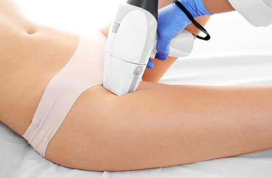 Laser hair removal around the pubic area