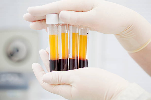 Platelet Rich Plasma - PRP in Vancouver and Squamish