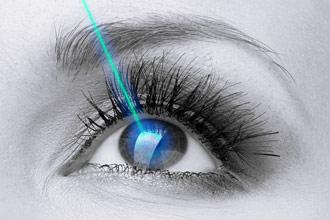 Laser Cataract Surgery
