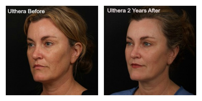 Collage of Ulthera Before and After