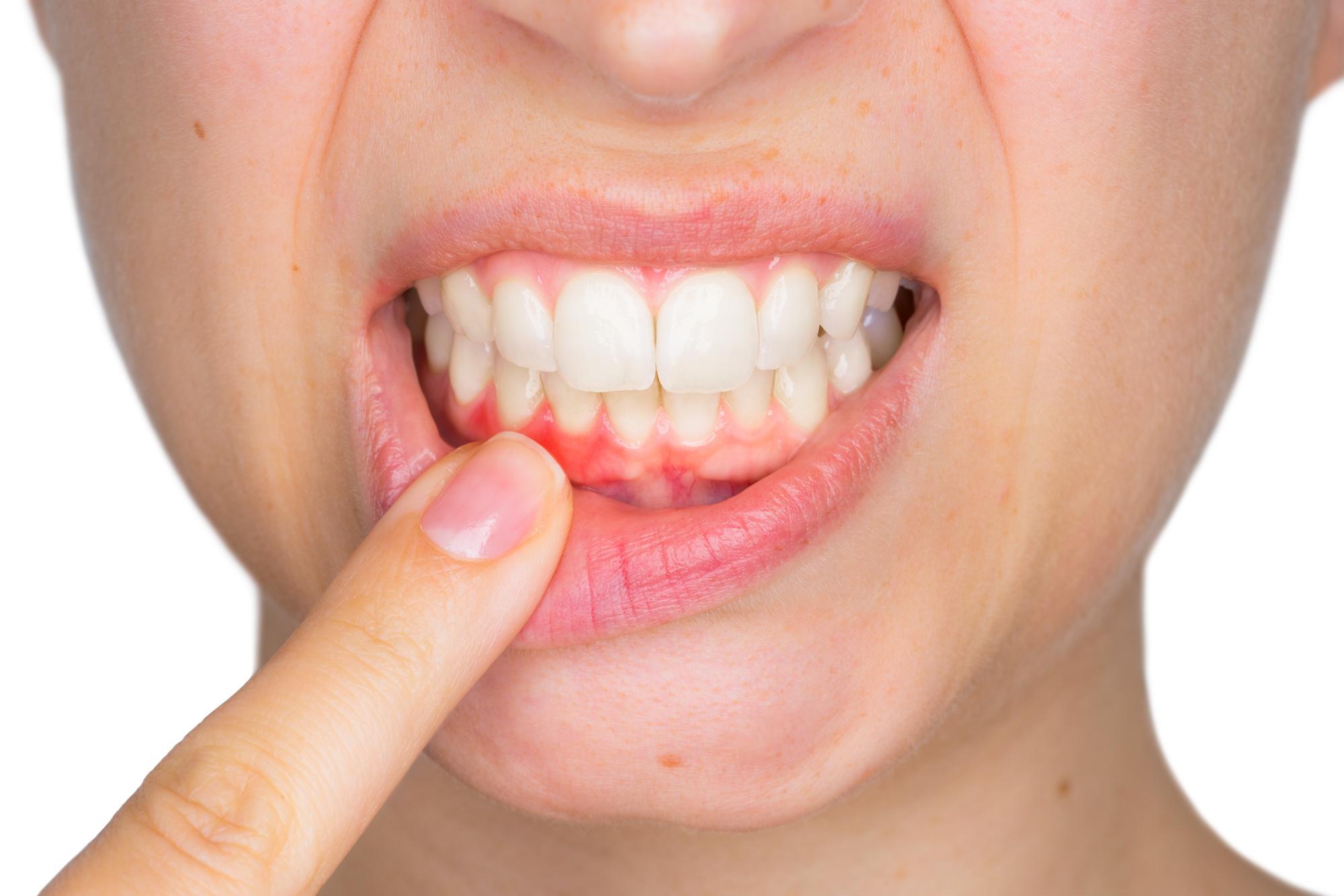 National Gum Care Month   ASH Dental Irvine