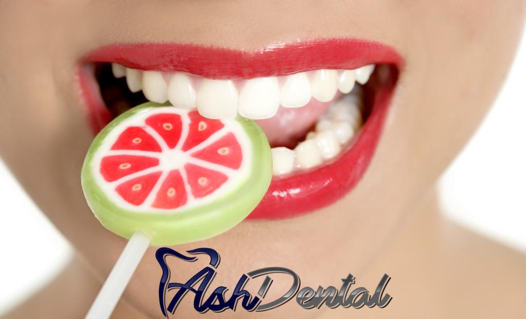 Sweetest Day | ASH Dental Irvine