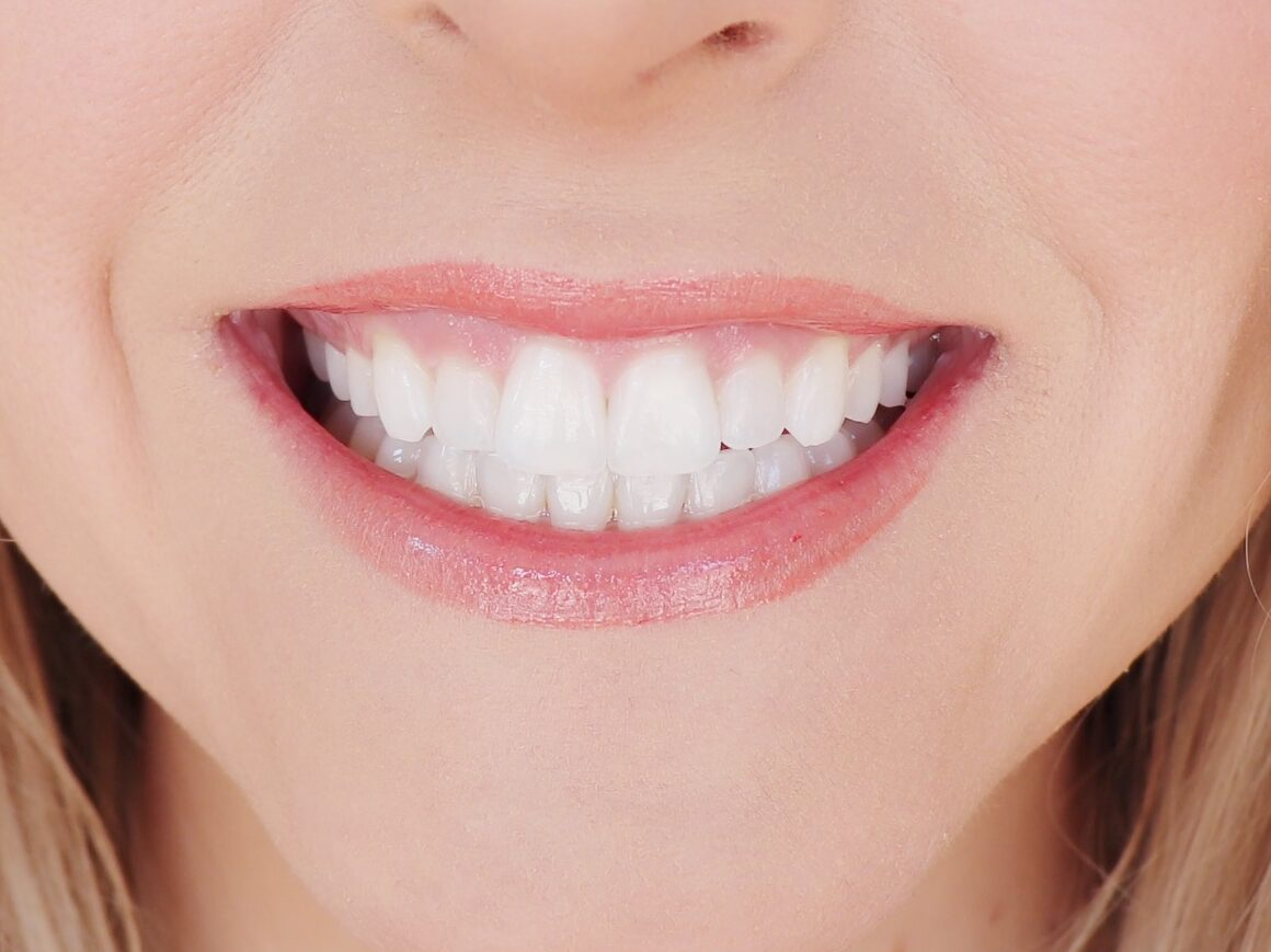 lifestyled-by-me-smile-brilliant-at-home-whitening-teeth-stains-after