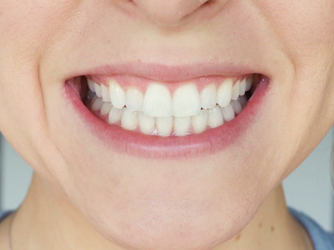 lifestyled-by-me-smile-brilliant-at-home-whitening-teeth-stains-before-1