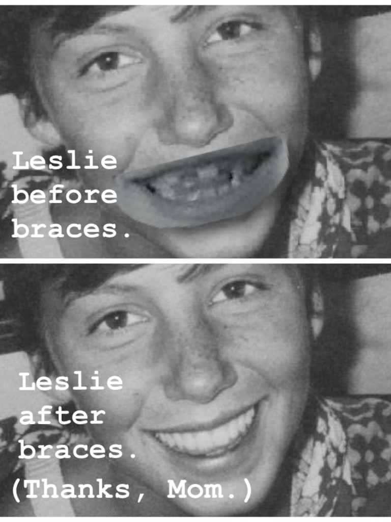 before after braces argument