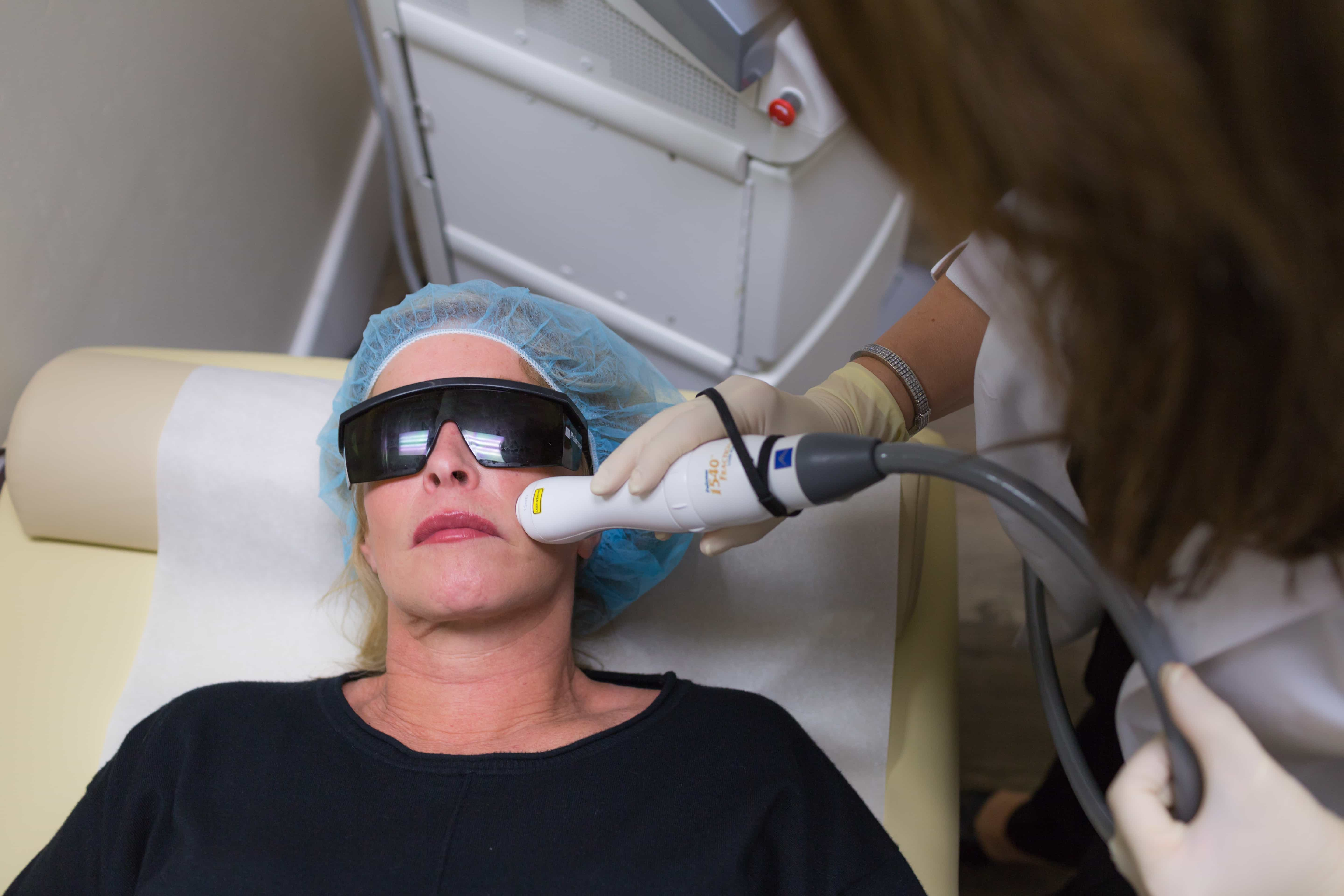 woman getting laser co2 treatments