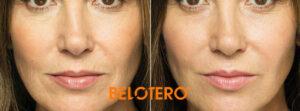 Belotero dermal filler to add volume and smooth wrinkles
