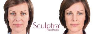 Sculptra cheek dermal filler that increases collagen production